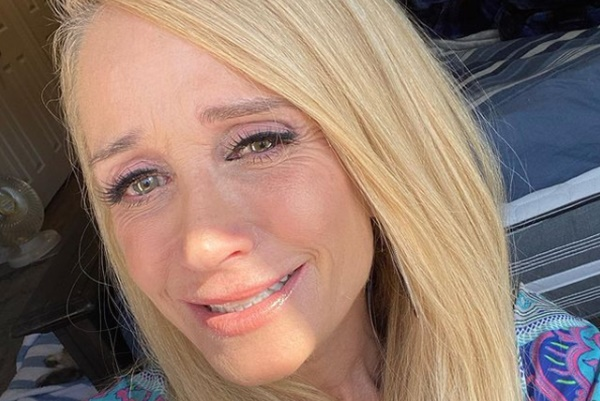 What Happened To Kim Richards Face